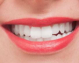 白く美しい歯を手に入れましょう